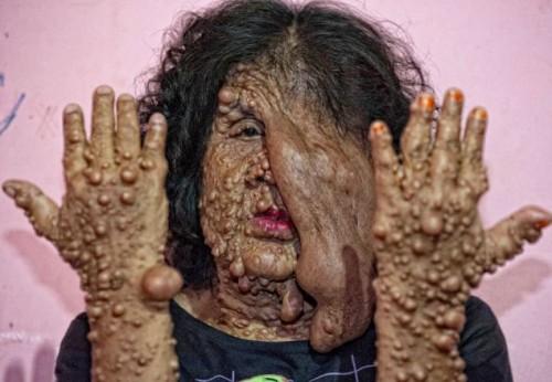 Skin Tumor