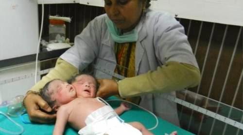 Ινδία Γεννήθηκε μωρό με δύο κεφάλια